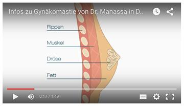 Gynäkomastie-Info-Video