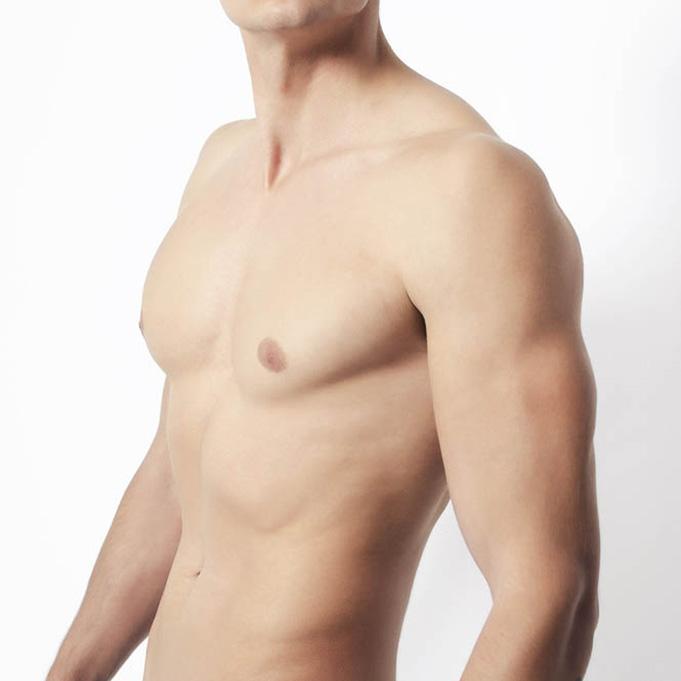 Behandlung einer Gynäkomastie stellt männliche Proportionen der Brustpartie wieder her
