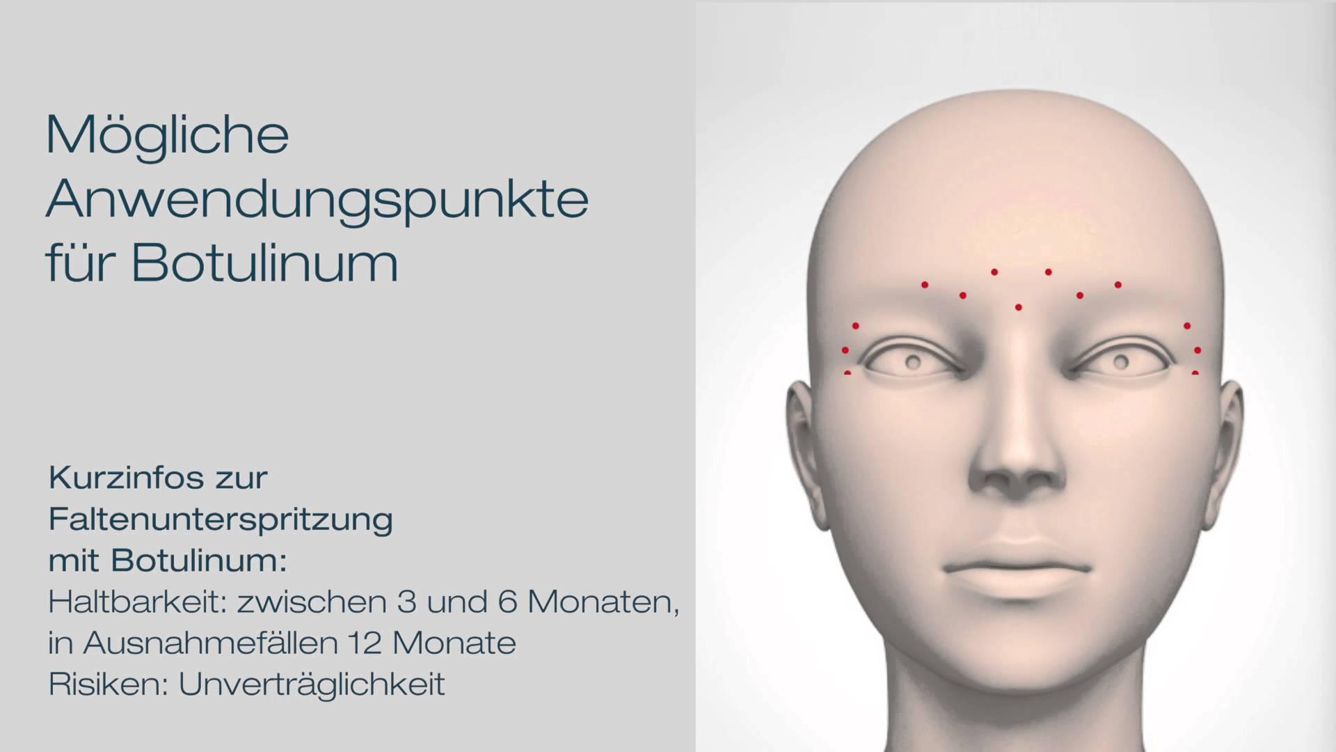Behandlung von Gesichtsfalten mit Botox in Düsseldorf durch Dr. Manassa