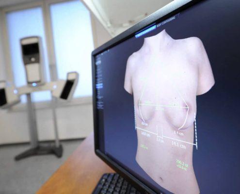 Brustimplantate und Größen