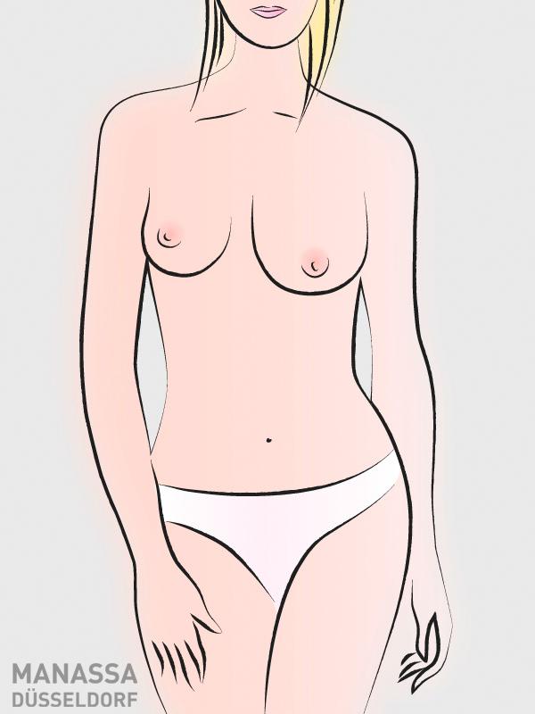 brustformen-asymmetrisch