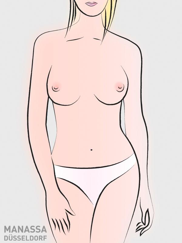 brustformen-seitlich-ansitzend