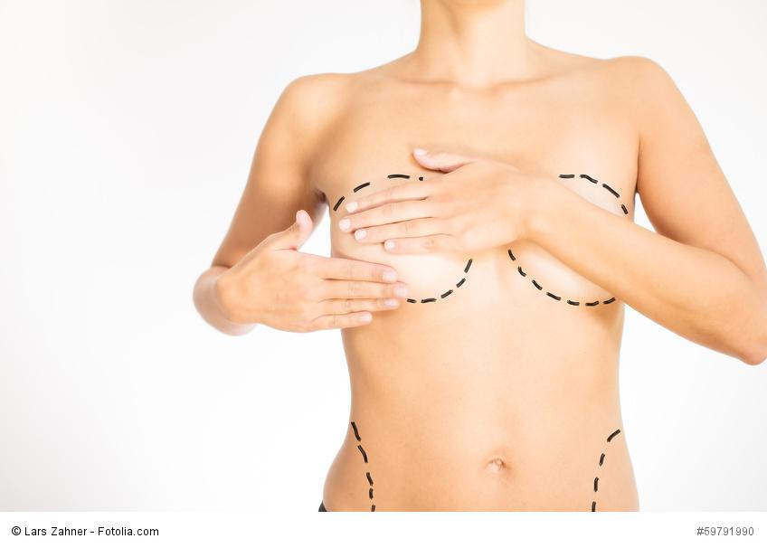 ästhetisch plastische chirurgie