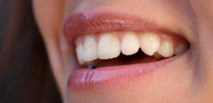 Extrem schön - Neue Zähne